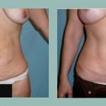 Abdominoplastía: Fotos de Casos - Antes y Después