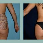 Gluteoplastía: Fotos de Casos - Antes y Después