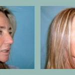 Lifting de Cara y Cuello: Fotos de Casos - Antes y Después