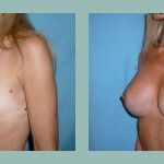 Mastoplastia - Aumento mamario