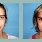 Rinoplastia - cirugia de nariz. Antes - después